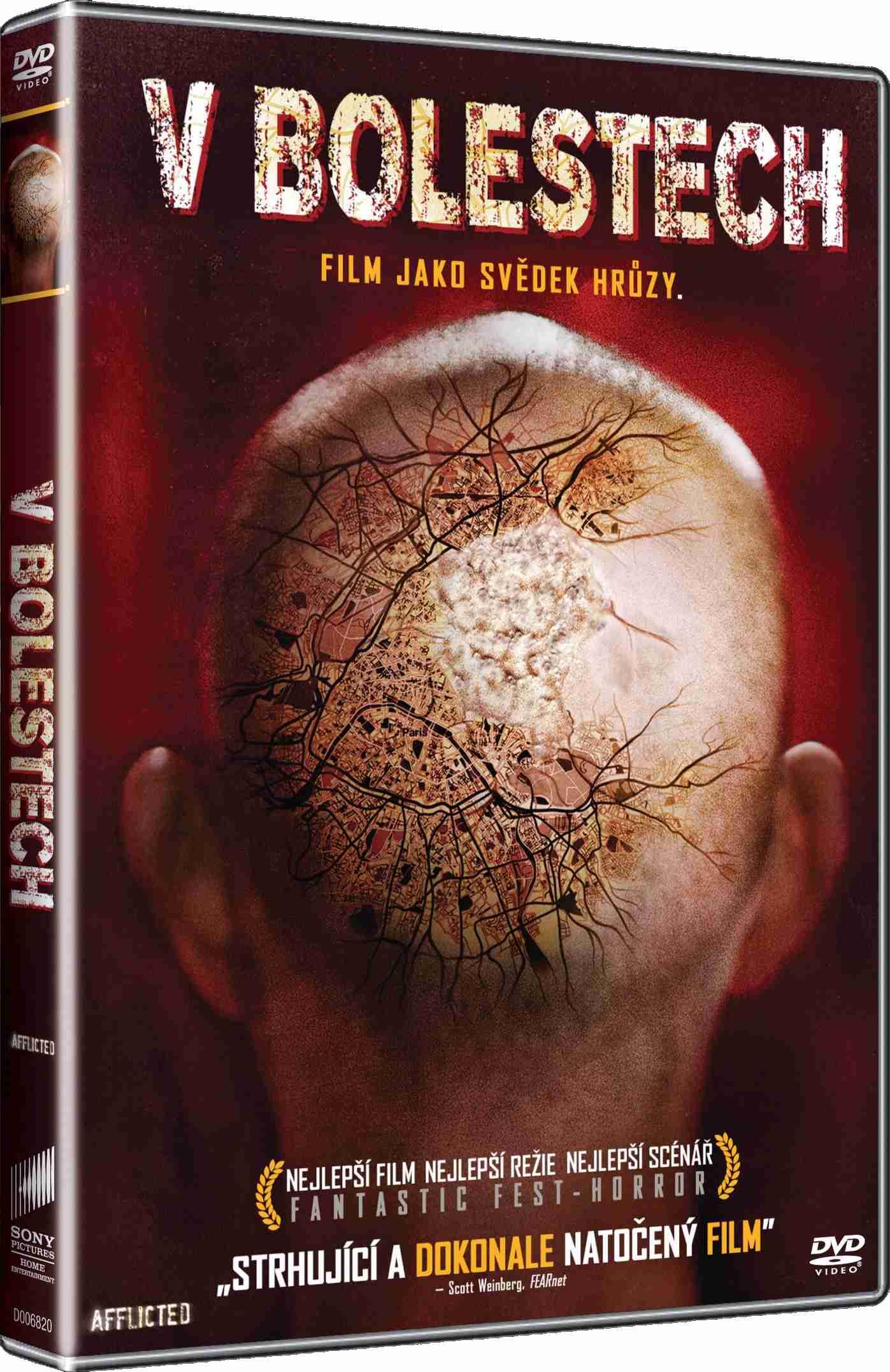 V BOLESTECH - DVD